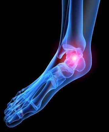 Bound Brook Podiatrist | Bound Brook Heel Pain/Fasciitis | NJ | Garden State Podiatry |