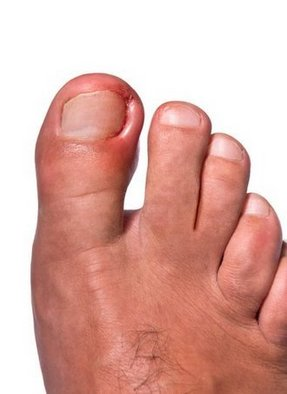 Bound Brook Podiatrist | Bound Brook Ingrown Toenails | NJ | Garden State Podiatry |