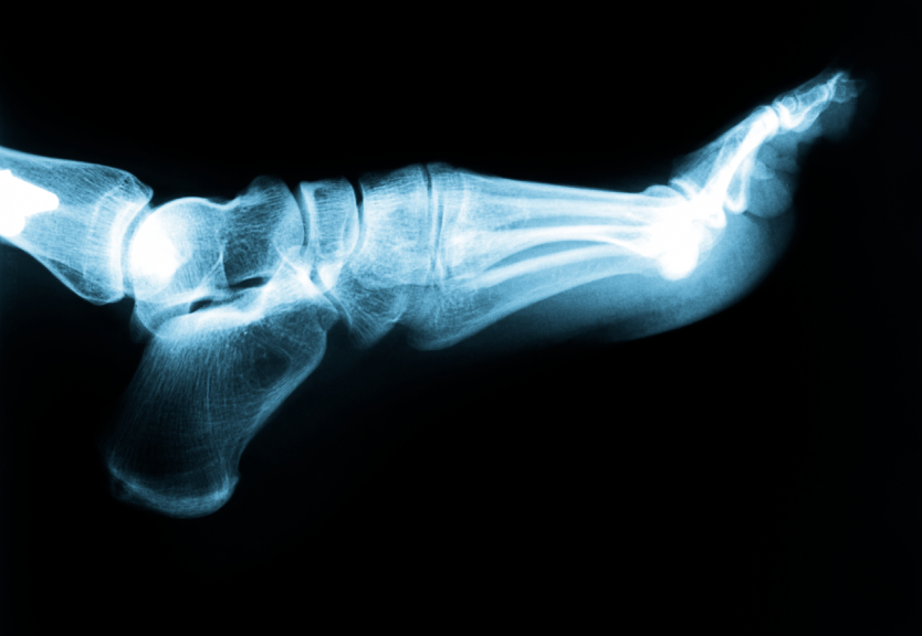 Bound Brook Podiatrist | Bound Brook Plantar Fasciitis | NJ | Garden State Podiatry |
