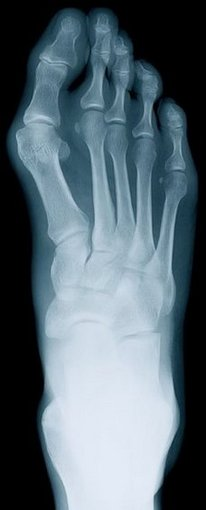 Bound Brook Podiatrist | Bound Brook Rheumatoid Arthritis | NJ | Garden State Podiatry |